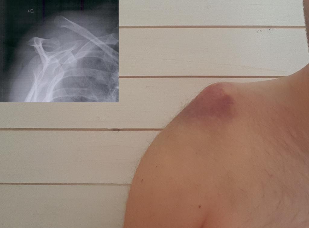 En bild på mig tagen nu. Den infällda röntgenbilden är från i lördags.